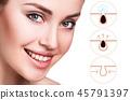 woman, acne, cosmetology 45791397