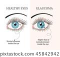 vector disease llustration 45842942