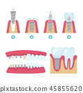 Dental crowns and implantation 45855620