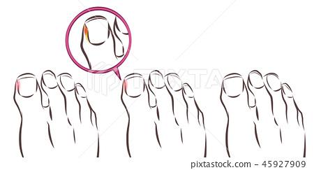 healthy foot and ingrown nail 45927909