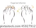 赤脚 菌类 感染 45927912