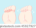 close up of Athlete foot 45927927