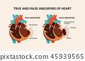 True and false (pseudoaneurysm) aneuryms of heart 45939565