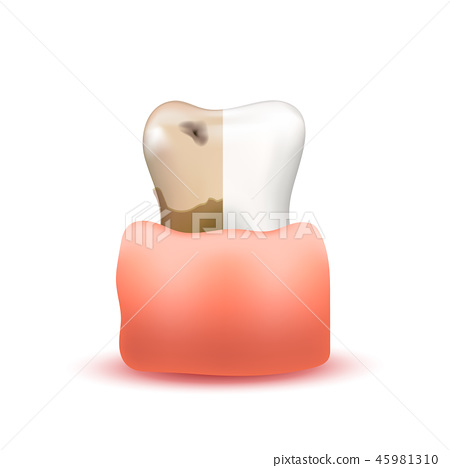 Healthy and sick side on one tooth in gum 45981310