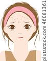 女性患有痤瘡 46081361