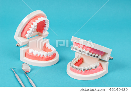 Compare tooth model and tooth with metal wir 46149489