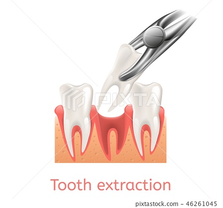 Realistic Illustration Process Tooth Extraction 46261045