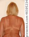 Back burnt after sunburn. Female body.  46395234