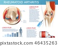 arthritis,infographic,method 46435263
