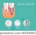 dental, implant, image 46560063