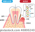 Healthy teeth and periodontal disease biofilms cross section 46800240