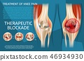 bone,joint,knee 46934930