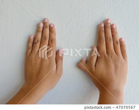 Polydactyly on human; rare abnormal characteristic 47070567