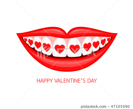 Human mouth with heart braces.  47105090