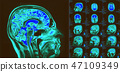 Magnetic resonance imaging of the brain. MRI scan 47109349