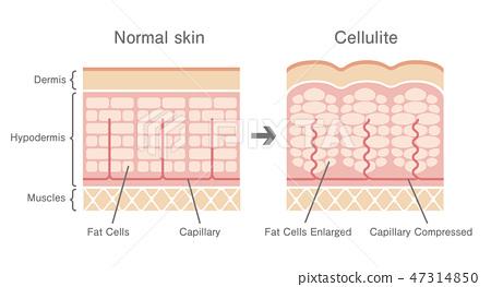 健康皮膚和橘皮組織產生的皮膚的橫截面比較例證(英語) 47314850