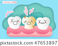tooth with dentin decay 47653897