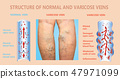 Varicose veins on a female senior legs. The structure of normal and varicose veins. 47971099