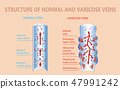 Varicose veins on a female senior legs. The structure of normal and varicose veins. 47991242