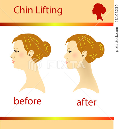 Illustration of a woman with a double chin  48108230