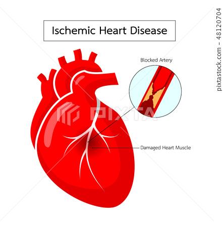 Human heart with Ischemic Heart Disease 48120704