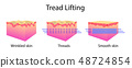 Thread lifting, vector illustration and skin 48724854