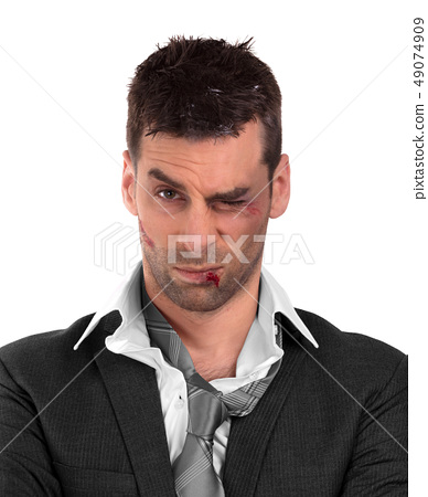 Close up of a businessman with bloody lip, beaten 49074909