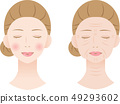 Wrinkled Woman Before After 49293602