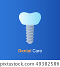 Dental care concept. Implant dentistry, root canal 49382586
