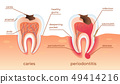 Unhealthy Teeth Stand in Raw in Gums. Tooth Decay. 49414216
