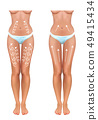massage lines on the legs in the abdomen and thighs 49415434