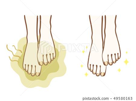 발 냄새 비포 애프터 49580163
