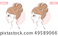 face about cosmetic nose surgery 49589066