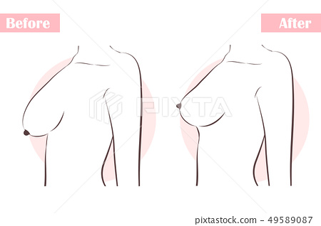 girl with breast plastic surgery 49589087