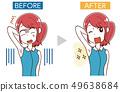圖庫插圖:美容治療女性不必要的頭髮治療前後 49638684