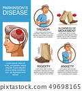 Parkinsons disease infographic 49698165