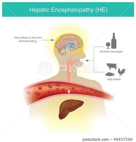 Hepatic Encephalopathy 49937500