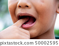 Boy or children have problem teeth about caries 50002595