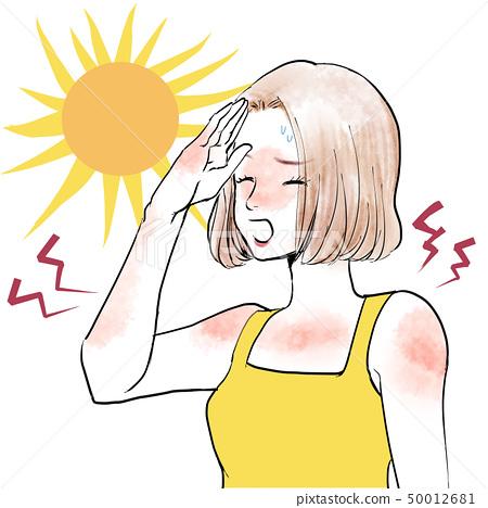 Women sunburn 50012681