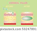 Cosmetic filler or dermal fillers 50247891