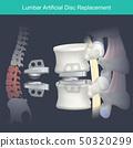 Lumbar Artificial Disc Replacement. 50320299