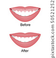 Mouth with a high smile line or gummy smile before and after the orthotropics, orthotropics or botox 50521252