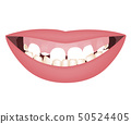 Kids mouth with a too big mandible and high smile line or gummy smile before the orthotropics or 50524405