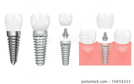 Realistic dental implant structure with all parts crown, abutment, screw. Dentistry. Implantation of 50658333