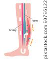 다리의 붓기 (부종)의 발생 원인 · 과정 일러스트 / 부종의 발생 (영문) 50756122