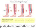 다리의 붓기 (부종)의 발생 원인 · 과정 일러스트 (영문) 50756141