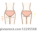 Cellulite Removal Before After 53295568