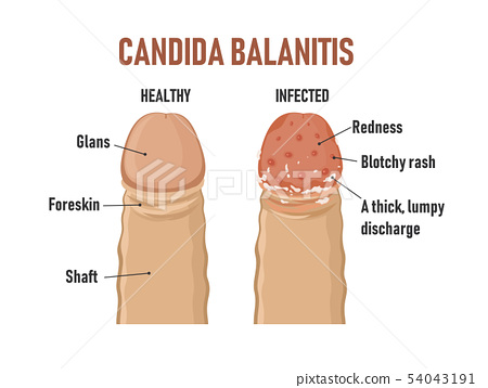 Candida balanitis. Healthy penis and infected 54043191