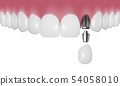 Vector 3d Realistic Render Human Teeth with Implant Closeup Isolated on White Background. Dentistry 54058010