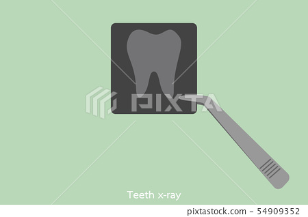 dental x-ray film with forceps of the dentist 54909352
